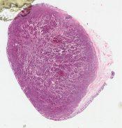Carcinoid tumor (Large bowel) [261/11]