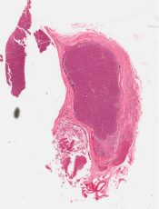 Hyperplasia (Parathyroid) [261/18]