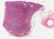Carcinoid (Mediastinum-thymus) [261/23]