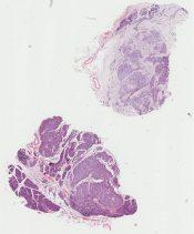 Islet cell tumor (Pancreas) [261/37]