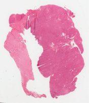 Oncocytoma (Kidney) [262/10]