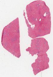 Malignant histiocytosis (Liver) [262/8]