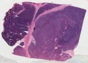 Thymoma (Mediastinum-thymus) [263/1]
