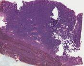 Carcinoid (Mediastinum-thymus) [263/10]