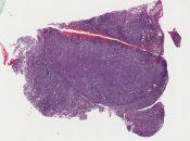 Malignant lymphoma (Mediastinum-thymus) [263/8]