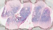 Carcinosarcoma (Peritoneum) [265/10]