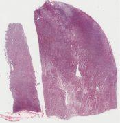 Malignant lymphoma (Ovary) [266/8]