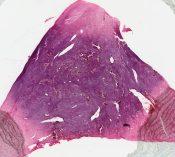 Leiomyosarcoma (Corpus) [27/19]