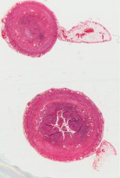 Appendicitis of measles (Appendix) [271/11]