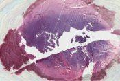 Malignant lymphoma (Oral cavity) [272/6]