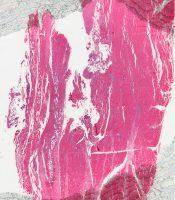 Myositis (Skeletal muscle) [275/3]