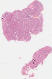 Hepatitis (Liver) [279/14]