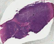 Hodgkin's disease (Lymphnodes) [280/3]