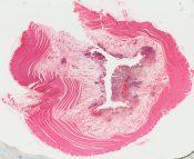 Ulcerative colitis (Large bowel) [281/10]