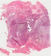 Leiomyosarcoma (Stomach) [281/2]