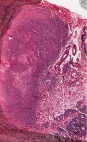 Metastatic tumor (Lymphnodes) [3/7]