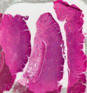 Lymphoplasmacytic proliferation (Nasal cavity) [312/10]