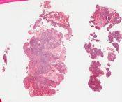 Adenoacanthoma (Corpus) [313/6]