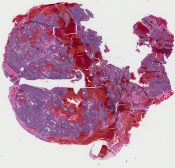 Metastatic tumor (CNS) [314/1]