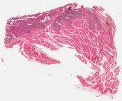 Rhabdomyosarcoma (Soft tissues) [314/2]
