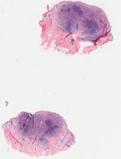 Lymphoid hyperplasia (Skin) [315/5]
