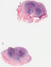 Lymphoid hyperplasia (Skin) [315/5]
