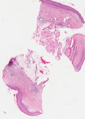Lichen sclerosis et atrophicus (Oral cavity) [319/2]