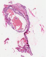 Basal cell carcinoma (Eye, eyelid) [319/3]