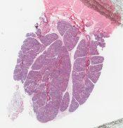 Sialadenitis (Salivary glands) [319/5]