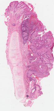 Sebaceous tumor (Skin) [320/7]