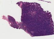Carcinoid (Mediastinum-thymus) [325/9]