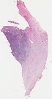 Hodgkin's disease (Lymphnodes) [330/2]