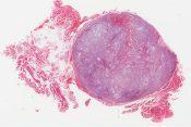 Histiocytoma (Soft tissues) [332/7]