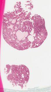 Microglandular hyperplasia (Cervix) [333/14]