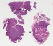 Lymphadenitis (Salivary glands) [337/3]