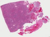Metastatic tumor (Spleen) [338/15]