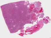Metastatic tumor (Spleen) [338/15]