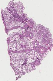 Metastatic tumor (Lung) [338/2]