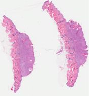 Epithelial nevus (Skin) [339/16]