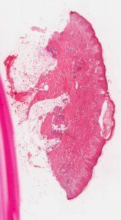Mastocytosis (Skin) [340/1]