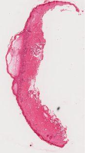 Dermatitis (Skin) [340/2]