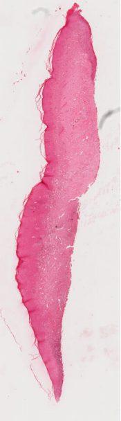 Bowen's disease (Skin) [340/3]
