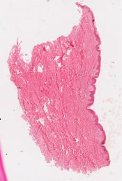 Leprosy (Skin) [340/4]