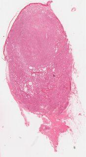 Leprosy (Skin) [340/5]