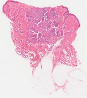 Pyogenic granuloma (lobular capillary hemangioma) (Soft tissues) [341/11]