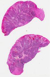 Fibroadenoma (Breast) [342/14]
