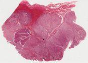 Carcinoid tumor (Stomach) [345/5]