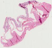 Pneumatosis cystoides intestinalis (Large bowel) [352/11]