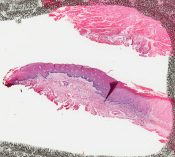Epidermoid (squamous cell) carcinoma (Oral cavity) [354/3]