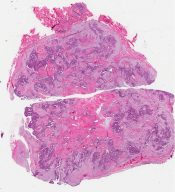 Fibroadenoma (with carcinoma) (Breast) [360/9]